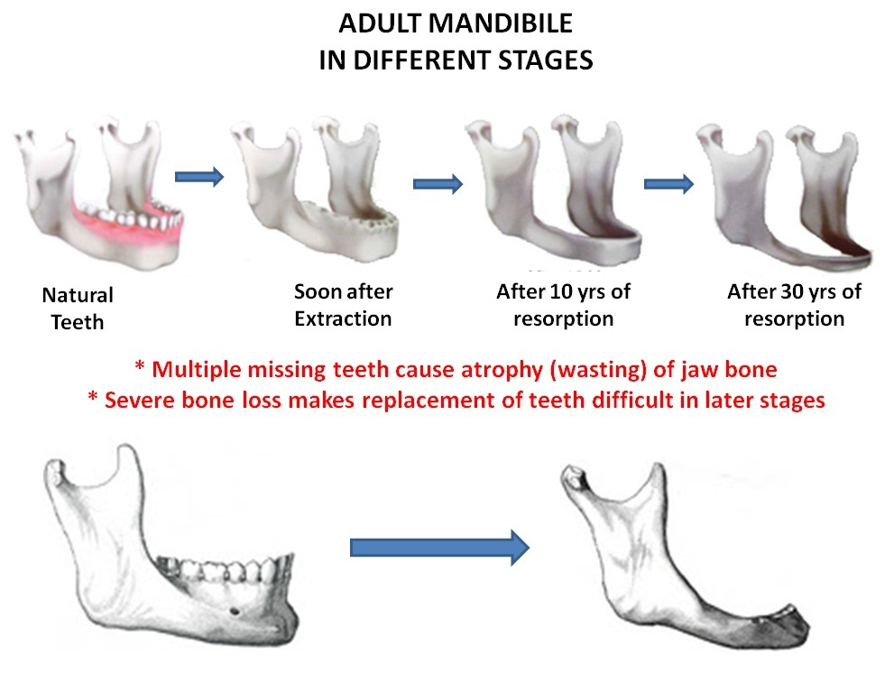 Adult mandible images 297