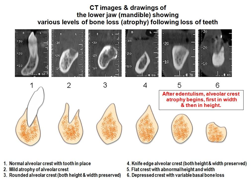 Basal Implantology Dental Care