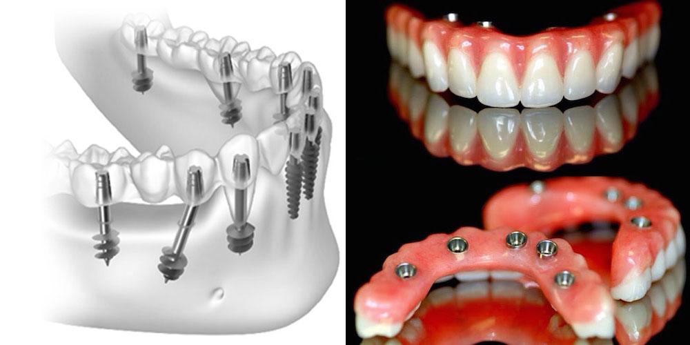 Basal Implants